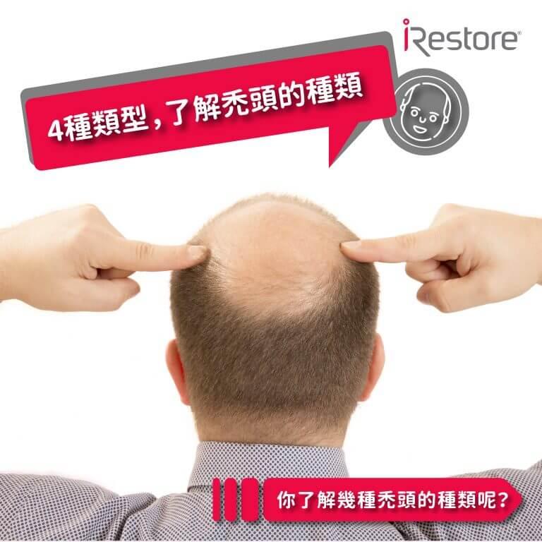 禿頭種類-激光 生髮鋼盔