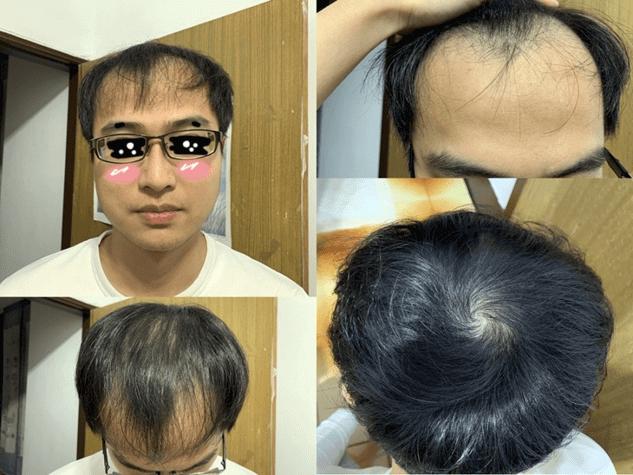 使用iRestore雷射生髮帽生髮的iRestore雷射生髮帽-Pro使用心得-效果-評價-推薦男人以相片記錄使用產品2個月的時候,從正面、前額、頭頂來看,都有明顯長出頭髮。